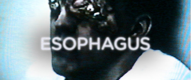 esophagus-banner